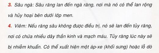 benh-sau-rang-02