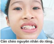 nguyen-nhan-can-cheo-rang-truoc-tre-em-01
