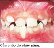 nguyen-nhan-can-cheo-rang-truoc-tre-em-02