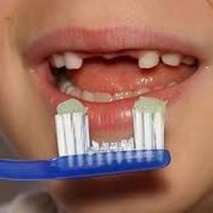 Vì sao trẻ bị sún đen và mòn răng
