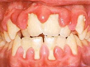 Hôi miệng – Biểu hiện của viêm răng lợi