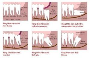 Tìm hiểu về răng khôn